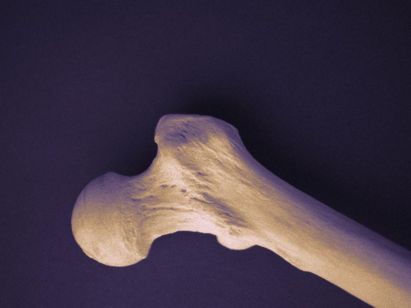 Serious Illness Affects Bone Health