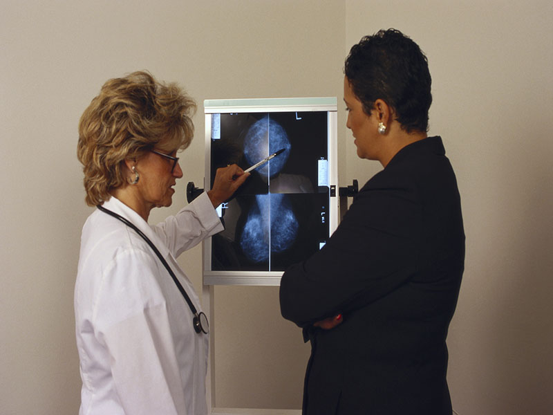 Social Contagion Impacts Imaging Use in Breast Cancer
