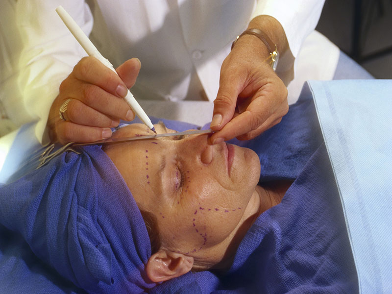 News Picture: 'Optimal' Facelifts Do Make You Look Younger, Study Finds