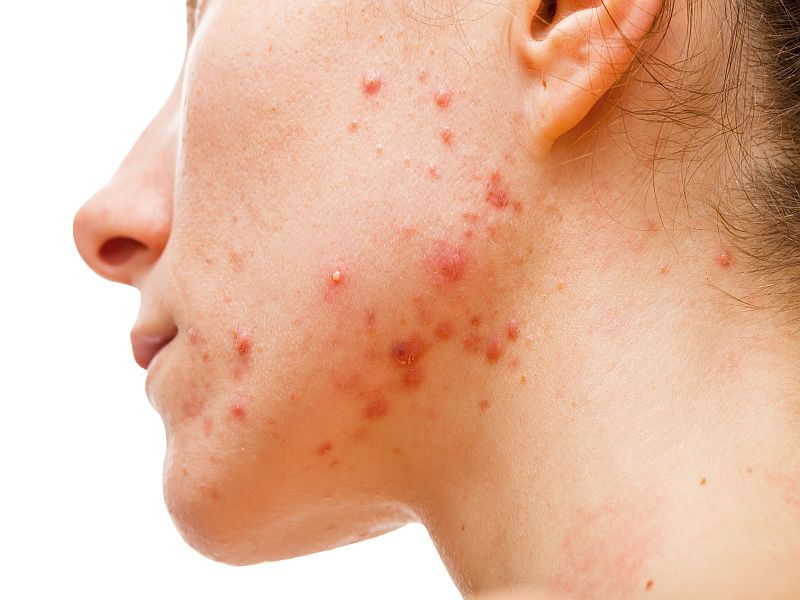 Many Patients With Acne Take Antibiotics Too Long: Study