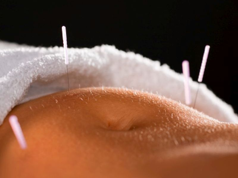 Can Acupuncture Ease Severe Constipation?