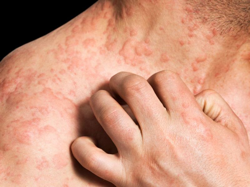 News Picture: Eczema's Effects More Than Skin Deep