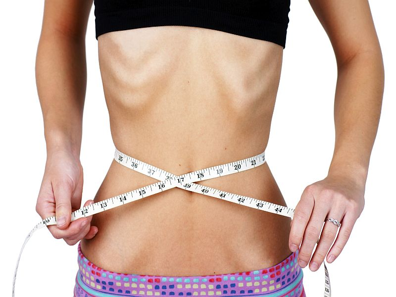Diet Pill, Laxative Use Often Precedes an Eating Disorder
