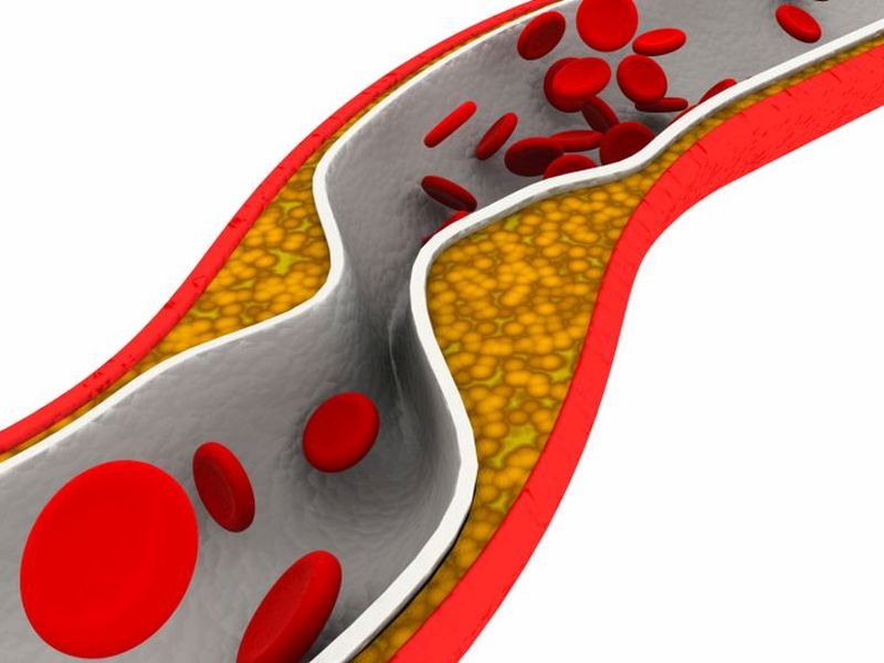 After Heart Attack, Stenting More Than the Blocked Artery May Be Best