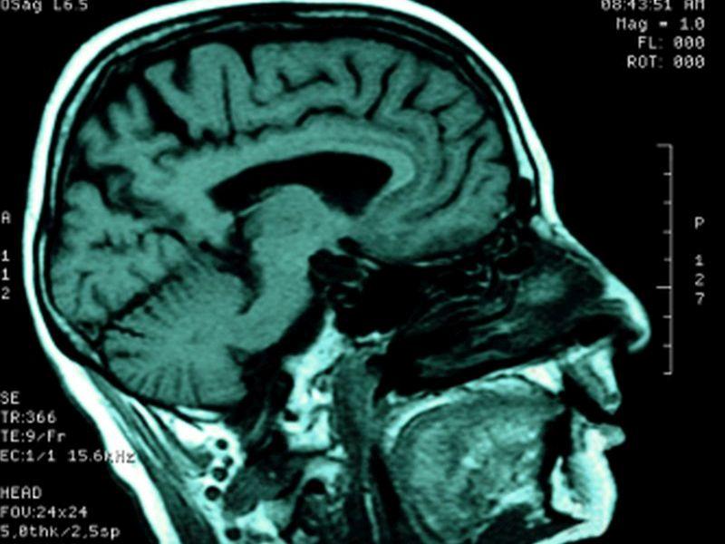 Schizophrenia Affects Brain's Communication Network