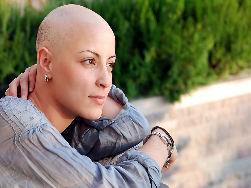 SABCS: Scalp-Cooling System Can Reduce Chemo-Related Hair Loss