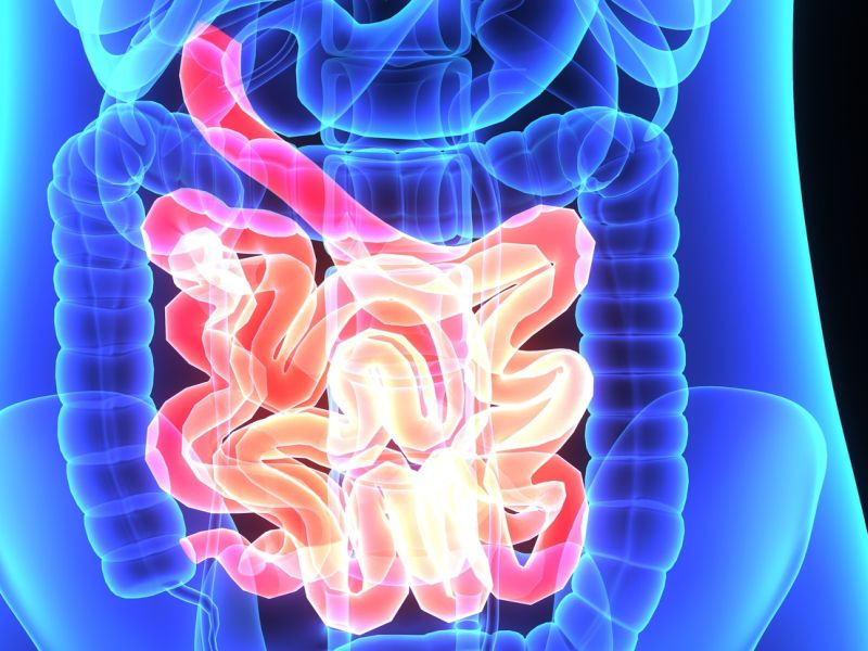 New IBS Drug Eases Stomach Pain and Diarrhea for Some: Study