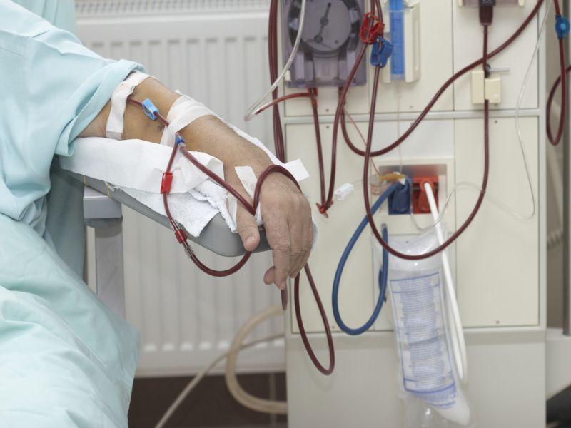 """Viernes, 29 de septiembre de 2017 (HealthDay News / Dr. Tango) - Casi la cuarta parte de los pacientes con diálisis renal ingresados en el hospital son readmitidos dentro de los 30 días después del alta, según un nuevo estudio </p> <p>.</p> <p> Para el estudio, los investigadores revisaron datos de casi 391.000 hospitalizaciones iniciales de pacientes en diálisis </p> <p> En el estudio, los investigadores revisaron datos de casi 391.000 hospitalizaciones iniciales de pacientes en diálisis en los Estados Unidos en 2013. Dentro de los 30 días después de salir del hospital, el 22 por ciento de los pacientes tenían reingresos no planificados. Sólo el 20 por ciento de esos reingresos fueron para el mismo diagnóstico que la primera admisión, los resultados mostraron. </p> <p> Sólo el 2 por ciento de todos los pacientes representaron el 20 por ciento de todos los reingresos. Las mujeres y los jóvenes eran más propensos a ser readmitidos, encontraron los investigadores. Además, las personas que estaban deprimidas, tenían enfermedad hepática, insuficiencia cardíaca o que abusaban de drogas tenían más probabilidades de terminar de nuevo en el hospital. </p> <p> """"Para reducir los reingresos en los pacientes de diálisis, tal vez un buen punto de partida sería instituir intervenciones dirigidas a los usuarios de alta y crear una puntuación de riesgo validado incorporando factores de riesgo probables"""", Dr. Girish Nadkarni, de la Escuela de Medicina Icahn en Mount Sinai en la ciudad de Nueva York, dijo en un comunicado de prensa de la Sociedad Americana de Nefrología. </p> <p> El estudio fue publicado en línea el 28 de septiembre en el <i> Clinical Journal of the American Society de Nefrología </i>. </p> <p> – Robert Preidt </p> <p class="""