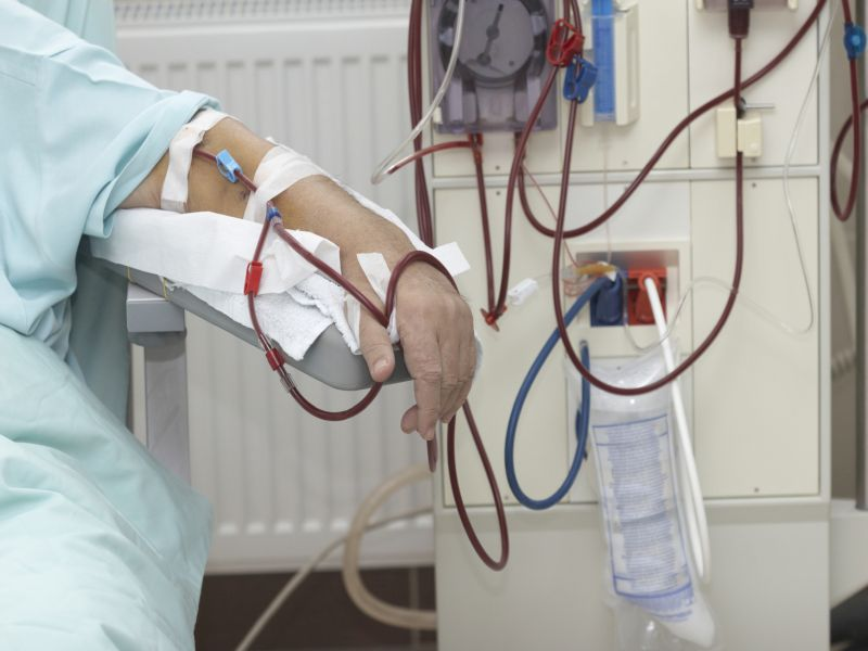 Kidney Docs Worry Over No Dialysis for Undocumented Immigrants