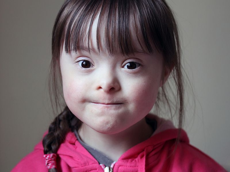 Most Families Cherish a Child With Down Syndrome, Survey Finds