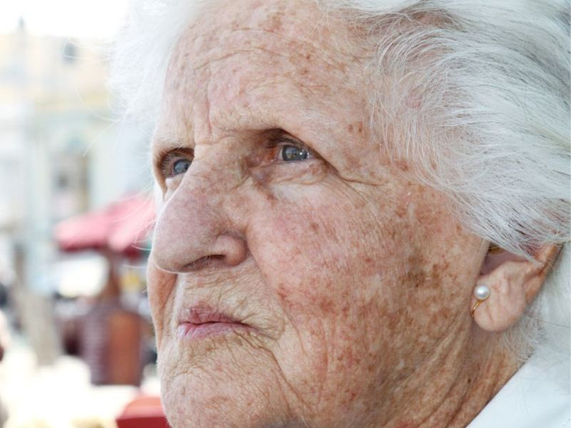 Rosacea Might Boost Parkinson's Risk: Study