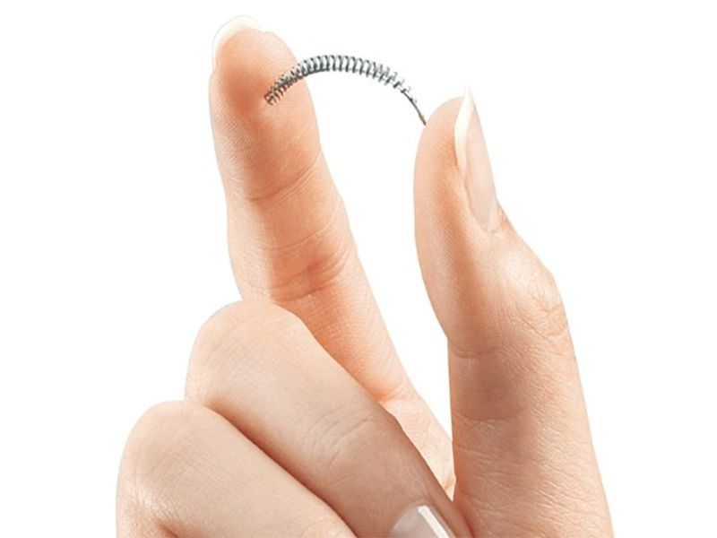 Essure Female Sterilization Device Appears Safe: Study