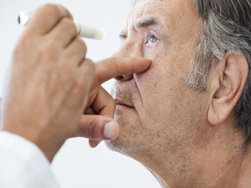 Parkinson's Drug Eyed as Treatment for Severe Macular Degeneration