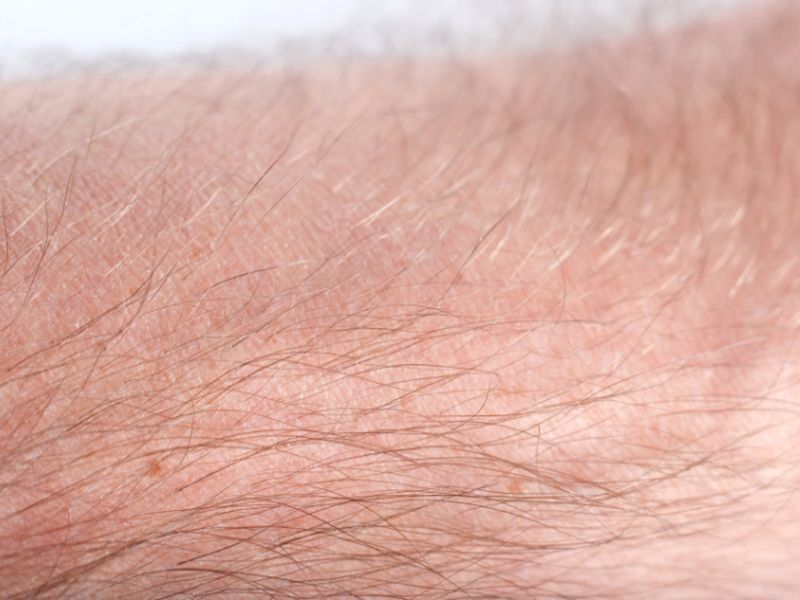 Skin 'Glow' Test Might Someday Spot Disease Risk Early