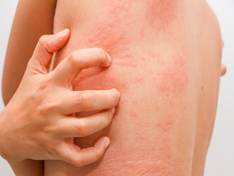 Ditch the Itch: Researchers Find New Drug to Fight Hives