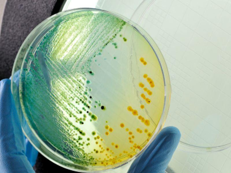 Patients Often Bring Undetected 'Superbug' to the Hospital: Study