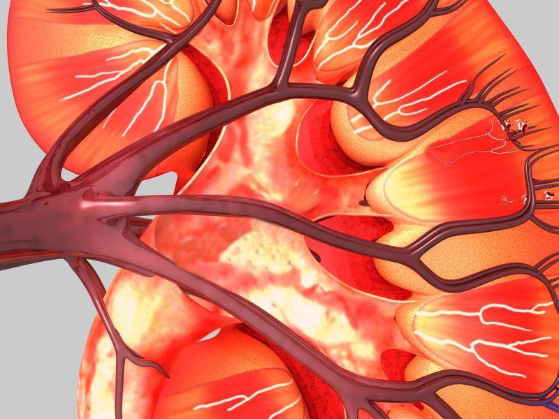 2型糖尿病罹病期間と末期腎不全リスクの関係は、発症年齢の若い方が顕著