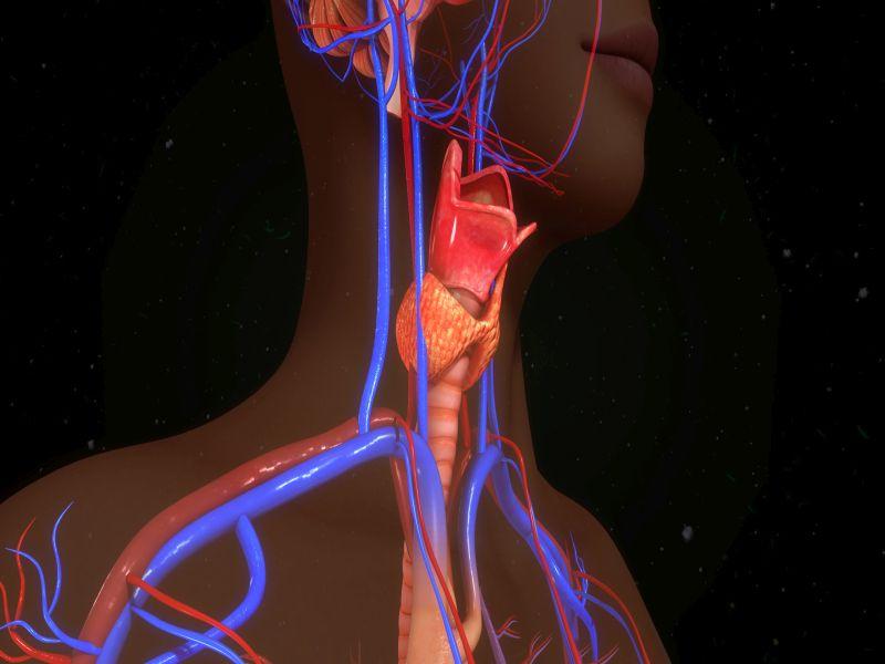 News Picture: Artificial 'Voice Box' Implant Helps Cancer Patient Speak