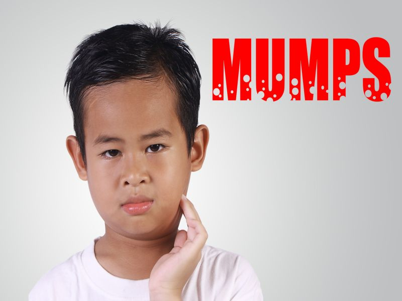 Some People Vaccinated Against Mumps May Not Be Protected: Study
