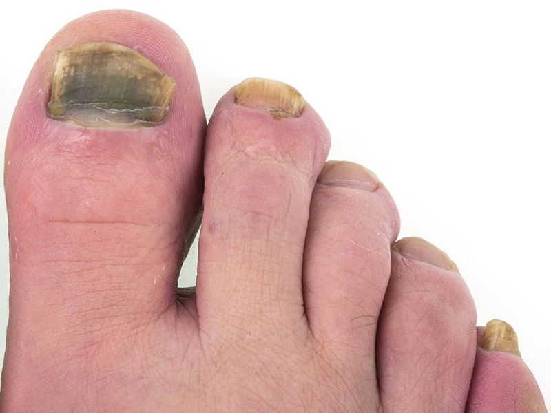 Another Downside of Weight Gain: Toenail Fungus
