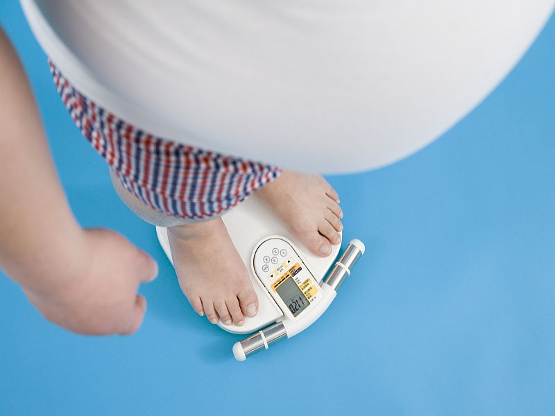 New drug may treat rare obesity disorder causing constant hunger