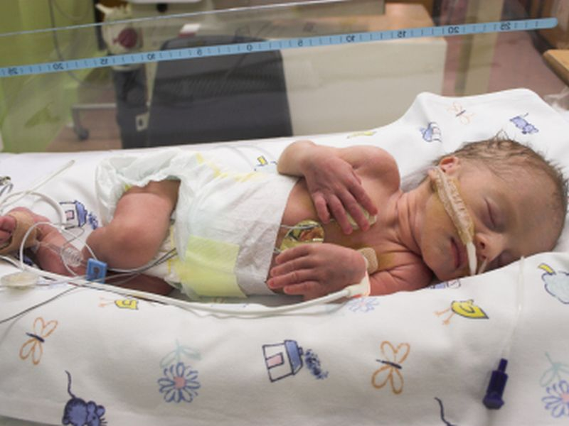 News Picture: Medical Costs Soar for U.S. Babies Born Addicted to Opioids