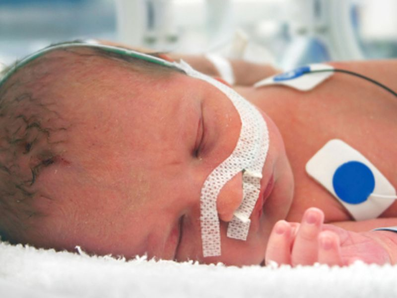 Mom's Voice: The Sleep Secret for Babies in Intensive Care