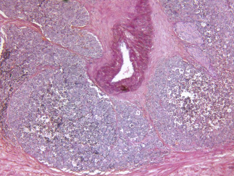 Lifestyle Factors Not Linked to Chronic Prostatitis/Pelvic Pain