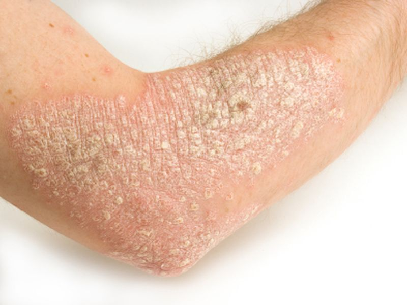 Sustained weight loss may help ease symptoms of psoriasis