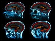 Las concentraciones de hierro cerebral están aumentadas en la enfermedad de Alzheimer