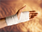 Cast Immobilization Recommended for Scaphoid Fractures