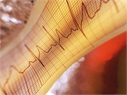 Artificial Intelligence Uses ECGs to Predict A-Fib Risk