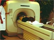 CAC帮助识别接受RT治疗的乳腺癌患者的CVD风险