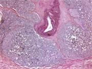 La radioterapia adyuvante no es mejor para el cáncer de próstata localizado