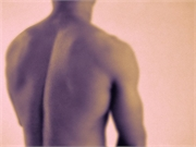 Clinical Score Predicts Poor Pain Control After Spine Surgery