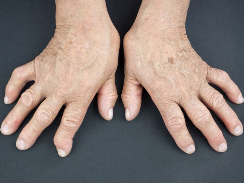 Heart Disease Deaths Drop for Those With Rheumatoid Arthritis: Study