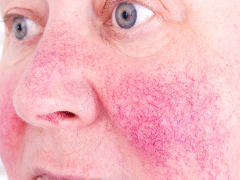 Dermatologists Cut Back on Antibiotics But Still Prescribe the Most