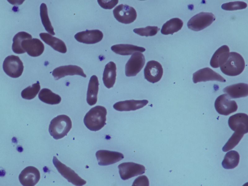 News Picture: Sickle Cell Trait Not Linked to Early Death in Study