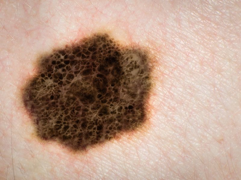 DNA Analysis Might Reveal Melanoma Risk