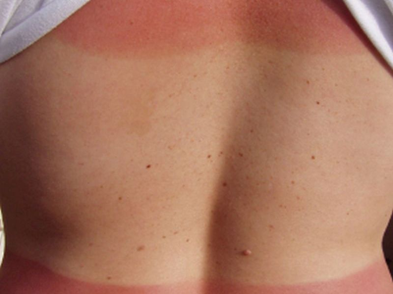 Some Smart Yet Easy Ways to Shield Yourself From Skin Cancer