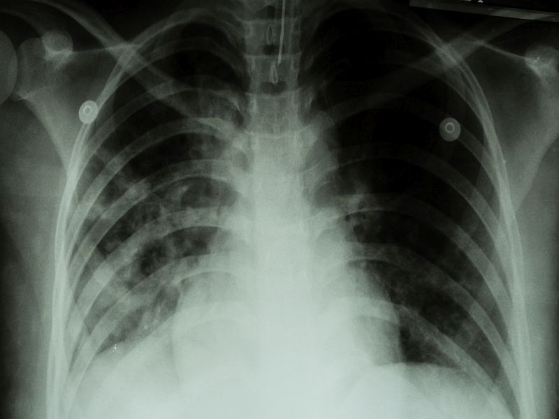 TB Cases Falling for Foreign-Born People in U.S.