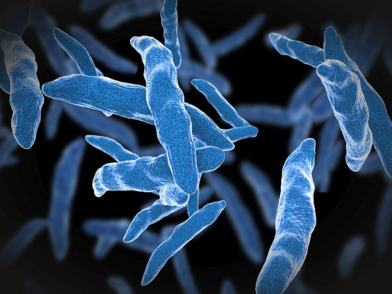 Tuberculosis Decline in U.S. Has Stalled, CDC Reports