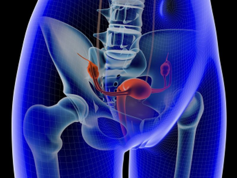 Ovary Removal Linked to Kidney Disease
