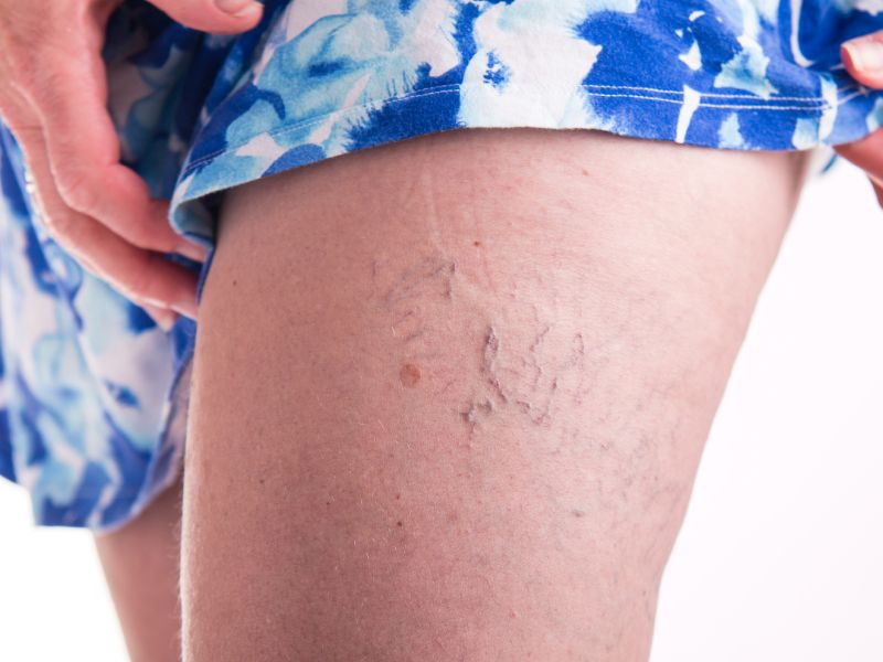 News Picture: When to Treat Varicose Veins