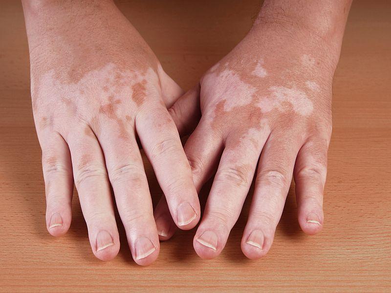 Des chercheurs localisent d'autres gènes liés au vitiligo