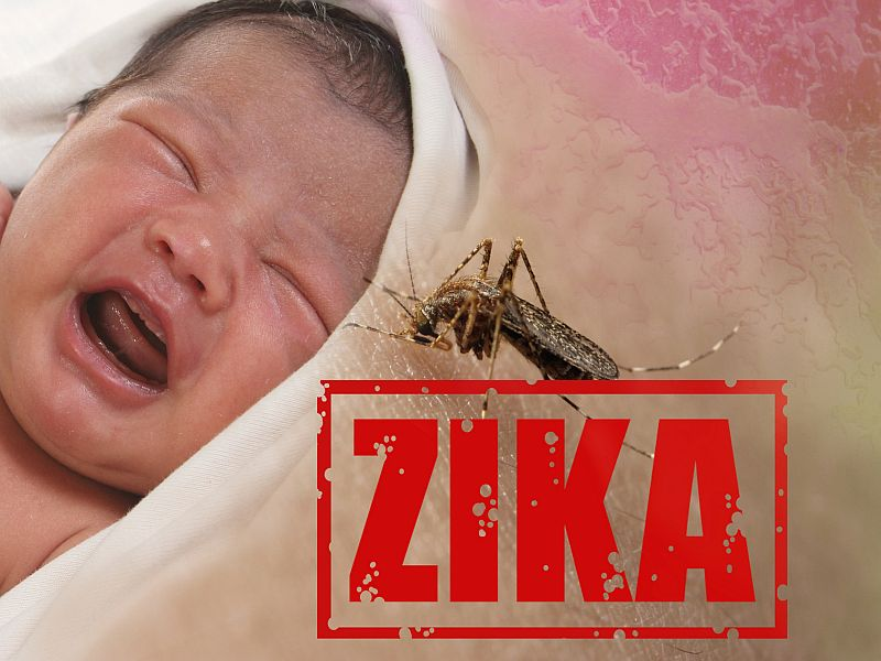 News Picture: Zika-Linked Birth Defects Surge in Colombia: CDC