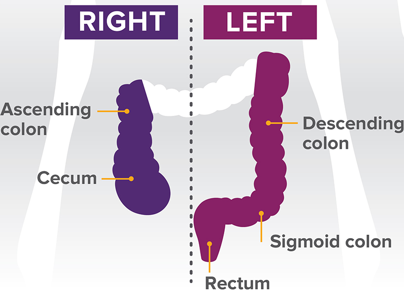 an analysis of colon cancer Even though a family history of colon cancer is an important risk factor, a majority (80%) of colon cancers occur sporadically in patients with no family history of colon cancer approximately 20% of cancers are associated with a family history of colon cancer.