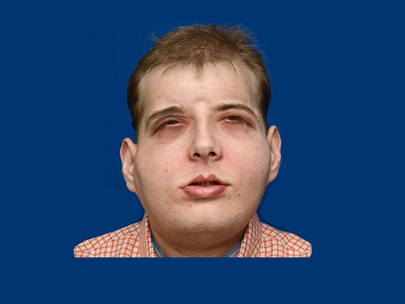 Firefighter Receives Most Extensive Face Transplant Ever