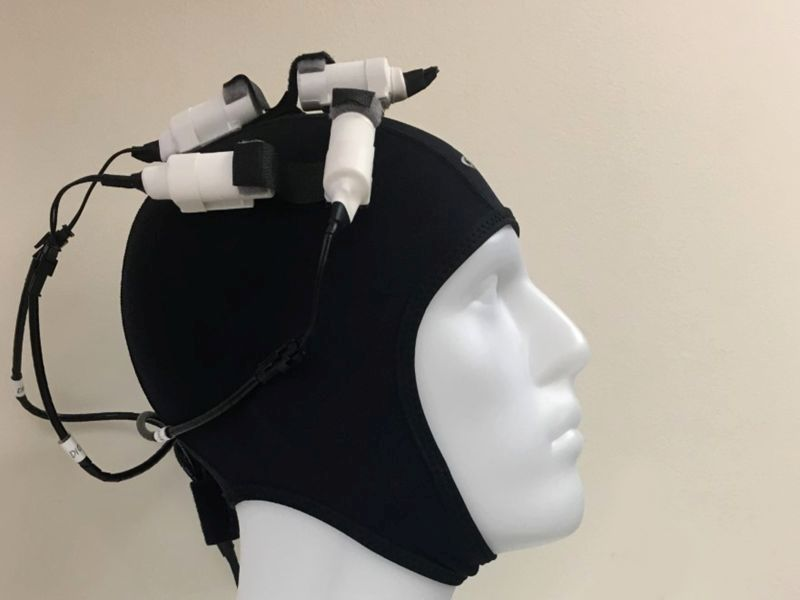 Wearable 'Brain Stimulator' May Boost Stroke Recovery