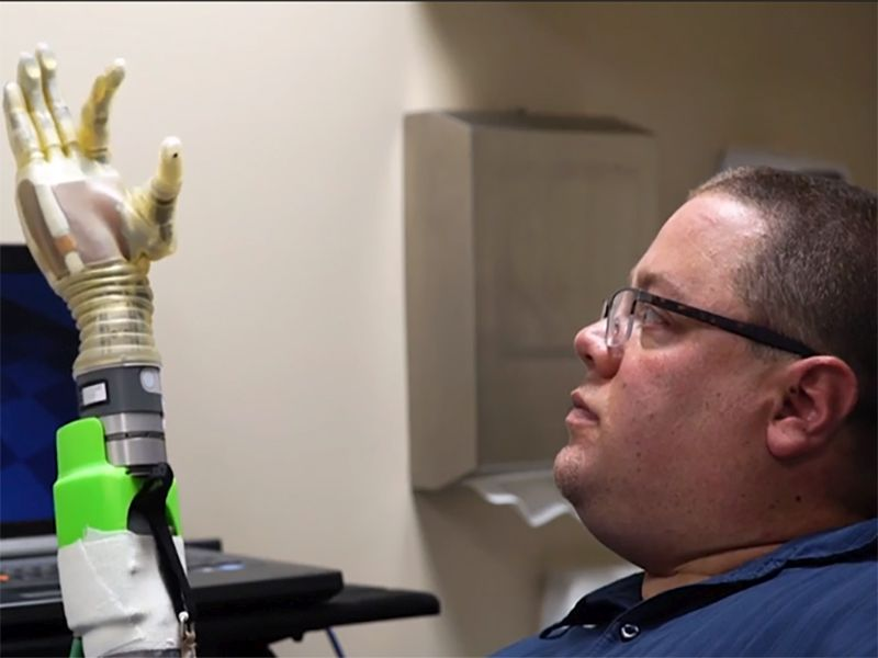 'It's Like You Have a Hand Again': New Prosthetic Gets Closer to the Real Thing